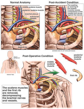 Thoracic Outlet Syndrome with Resection of the First Rib and Scalene Muscles