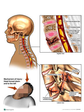 Cervical Spine Injuries