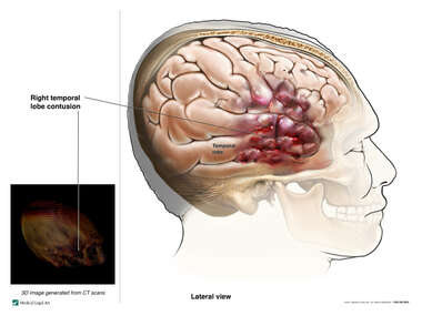Right Temporal Lobe Contusion