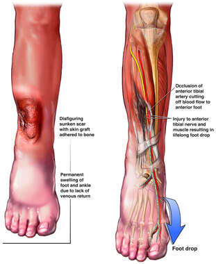 Occlusion of Tibial Artery by Scar Tissue