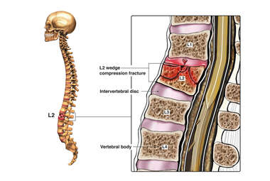 Pre-operative Condition with Lumbar Spine Fracture