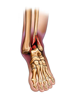 Ankle Dislocation with Fibular Fracture