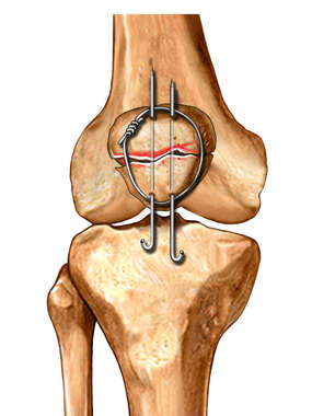 Patella Fixation