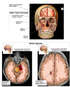 Facial Fractures with Brain Injuries