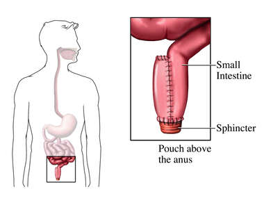 Pouch Above the Anus