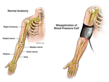 Misapplication of Blood Pressure Cuff with Nerve Damage