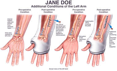 Conditions of the Left Arm