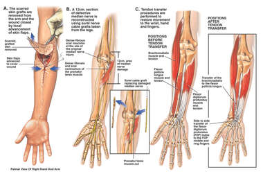Secondary Surgical Repairs of the Arm