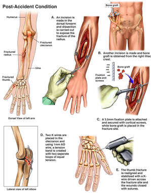 Left Arm and Hand Fractures with Surgical Fixation