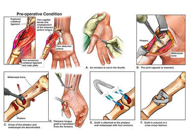 Right Hand Injuries with Surgical Reconstruction and Grafting