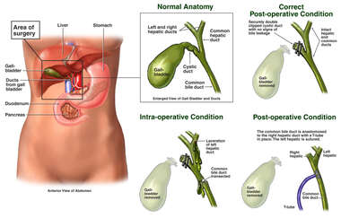 Progression of Condition Following Gall Bladder Surgery