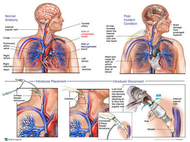 Catheter Complications