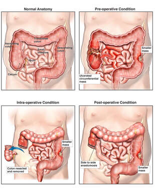 Colon Cancer: Bowel Resection