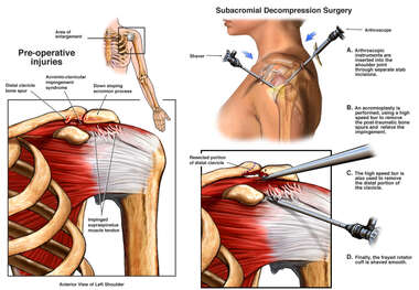 Left Shoulder Impingement Syndrome wih Arthroscopic Surgery