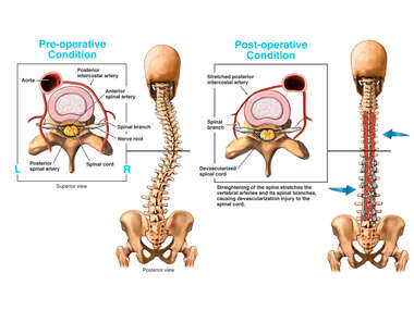 The Vasculature of the Spinal Cord Before and After Spinal Correction