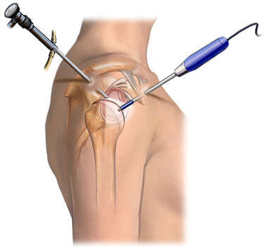 Arthroscopic Image Placement for Shoulder Surgery