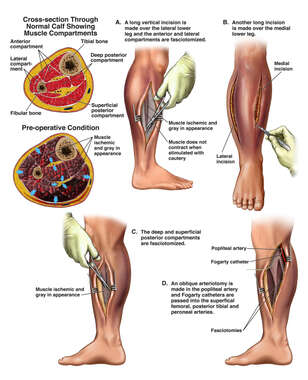 Ischemic Right Leg with Fasciotomy