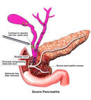 Severe Pancreatitis
