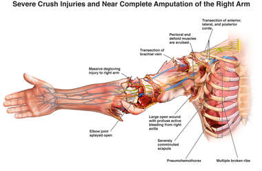 Severe Crush Injuries and Near Complete Amputation of the Right Arm