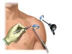 Portals for Arthroscopic Surgery in the Shoulder