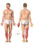 Front and Back Male Figures with Post-accident Burn Injuries