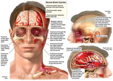 Severe Brain Injuries
