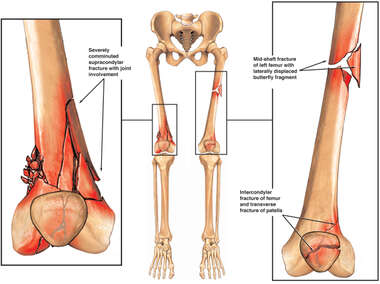Bones of the Lower Extremities with Fractures of the Femurs Bilaterally