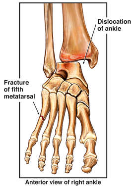 Fractured (Broken) Foot Bone and Dislocated Ankle Joint
