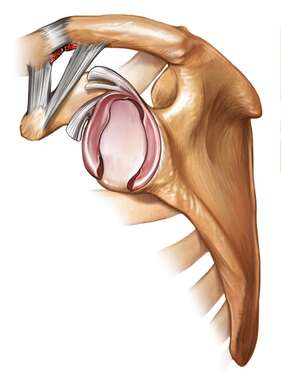 Post-operative Glenoid Labrum- lateral view