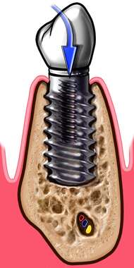 Dental Implant in Mandible