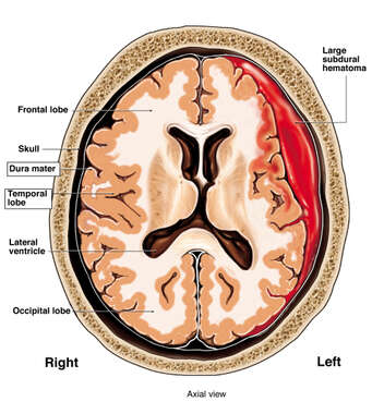 Worsening of Head Injury (Subdural Hematoma)