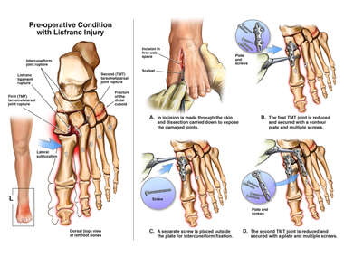 Open Reduction and Internal Fixation of Left Foot Injuries
