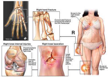 Female Figure with Post-accident Injuries to the Hand, Knee, Chest and Hip