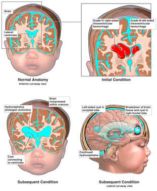 Progression of Brain Injury