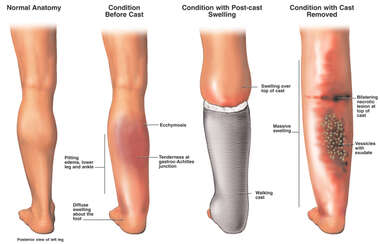 Progression of Leg Injury