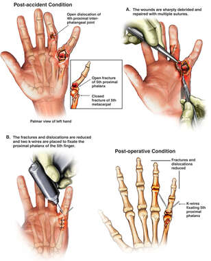 Left Finger Injuries with Surgical Repairs