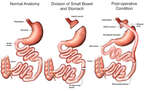 Gastric Bypass Surgery: Roux-en Y Procedure