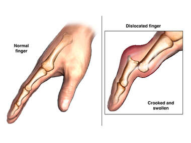 Finger Dislocation with Swelling