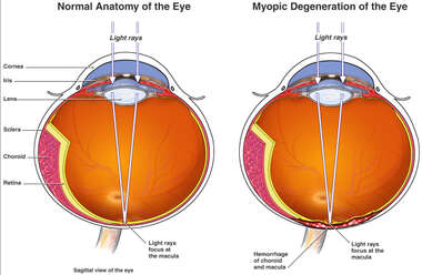 Myopic Degeneration