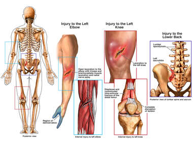 Posterior Male Skeletal Figure with Post-accident Injuries to the Left Arm, Knee and Pelvis