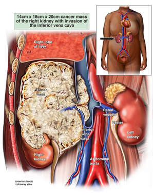 Cancer (Right Renal Cell Carcinoma)