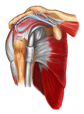 Impingement of Rotator Cuff