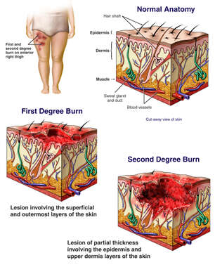 Severe Burns of the Anterior Thigh