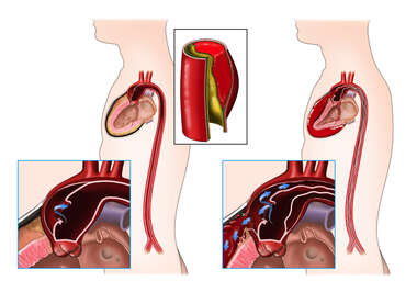 Aortic Dissection and Rupture Resulting in Cardiac Tamponade