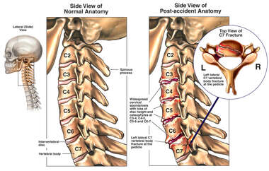 Post-accident Condition with Spondylosis, Osteophytes, and Fracture of the Cervical Spine