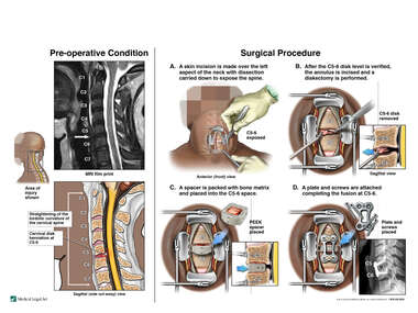 Cervical Disk Herniation with Surgical Diskectomy and Fusion