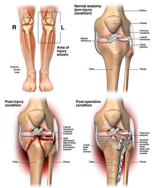 Left Knee Injury with Surgery