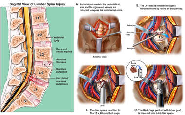 Anterior Lumbar Discectomy and Spinal Fusion Procedure