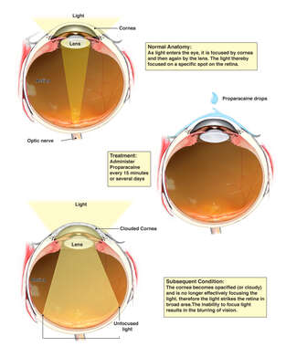 Use of Proparacaine with Resulting Corneal Damage