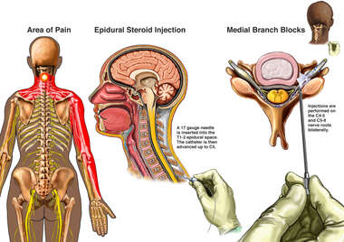 Cervical Pain Management